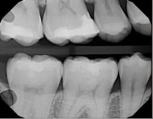 Dental X-Rays image